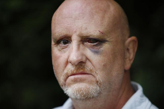 Darryl Armstrong was beaten up by 15 youths near his home in Carterton. Picture: Ed Nix